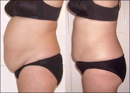 laser-assisted-liposuction-before-after-1.jpg