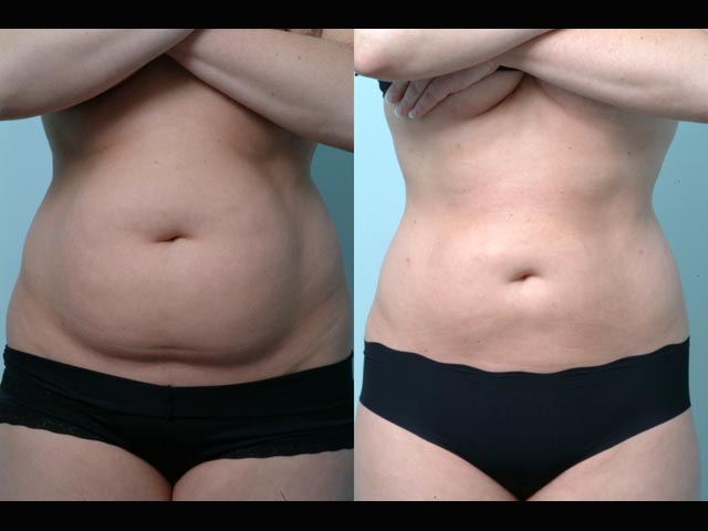 Liposuction-Before-and-After-1.jpg