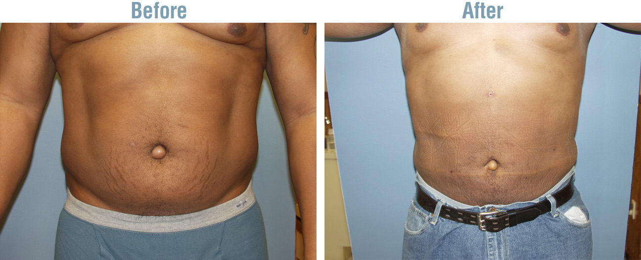 Laser_Lipo_Plus_before_after_1.jpg