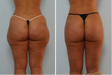 liposuction-before-and-after.jpg